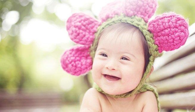 Criança com síndrome de down feliz